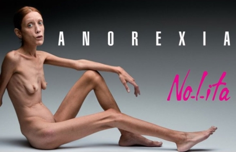 isabelle-caro-modelul-est-morte-d-anorexie