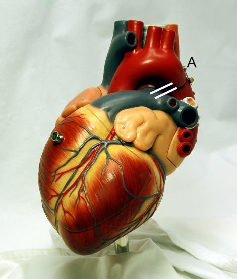 Heart_frontally_PDA