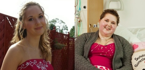stephanie-knight-descobriu-o-raro-tumor-pelvico-quando-tinha-17-anos-o-tratamento-provocou-ganho-de-peso-e-exigiu-amputacao-da-perna-direita-1359726195168_615x300